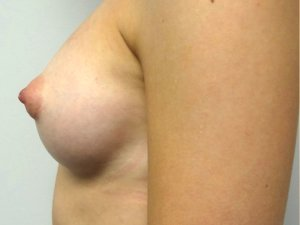 Manhattan Breast Augmentation after 3